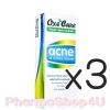 (ซื้อ3 ราคาพิเศษ) Oxe Cure Acne Oil Control Cleanser 75mL อ๊อกซี่เคียว แอคเน่ ออยล์ คอนโทรล คลีนเซอร์ เหมาะสำหรับทุกสภาพผิว ช่วยขจัดเชื้อแบคทีเรีย