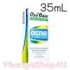Oxe Cure Acne Oil Control Cleanser 35mL อ๊อกซี่เคียว แอคเน่ ออยล์ คอนโทรล คลีนเซอร์ เหมาะสำหรับทุกสภาพผิว ช่วยขจัดเชื้อแบคทีเรีย